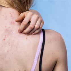 Bőrproblémák