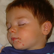csecsemo ill kisgyermekkori borproblemak