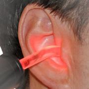 hallascsokkenes gyogyitasa safe laser rel