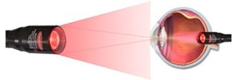 safe laser technologia