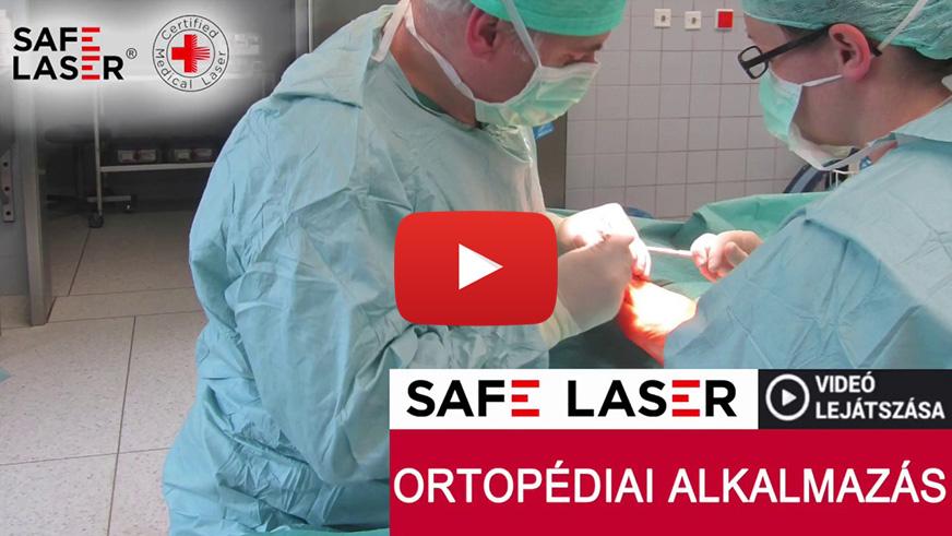 sl ortopediai felhasznalasa